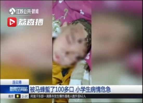 连云港一小分分快3分分快3技巧技巧 学生 被马蜂蜇了100多口 病情危急
